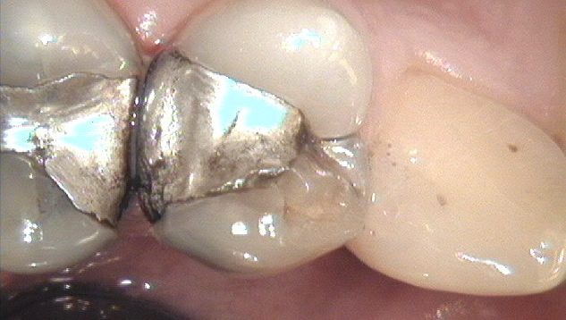 white fillings before